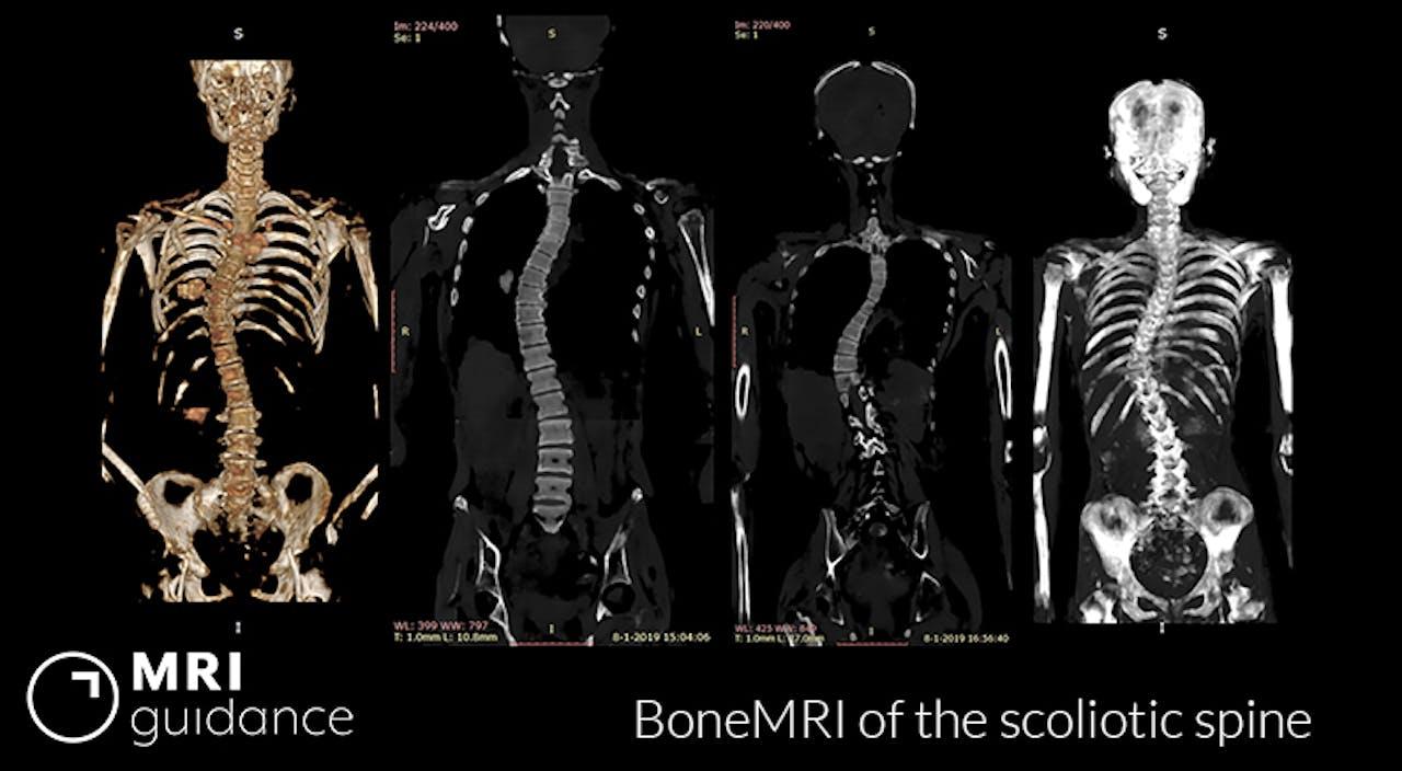 röntgenfoto van scoliose