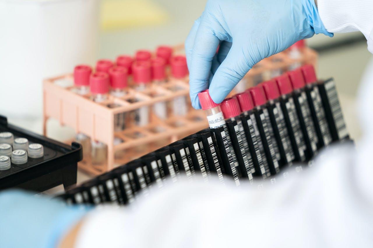 Het laboratorium van de GGD Amsterdam, waar wordt getest op het coronavirus.