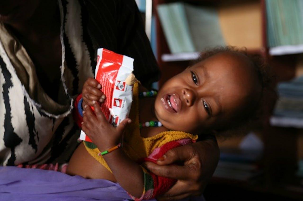 14-maanden oude baby krijgt voedingssuplementen om acute ondervoeding tegen te gaan. Foto: ANP/AFP