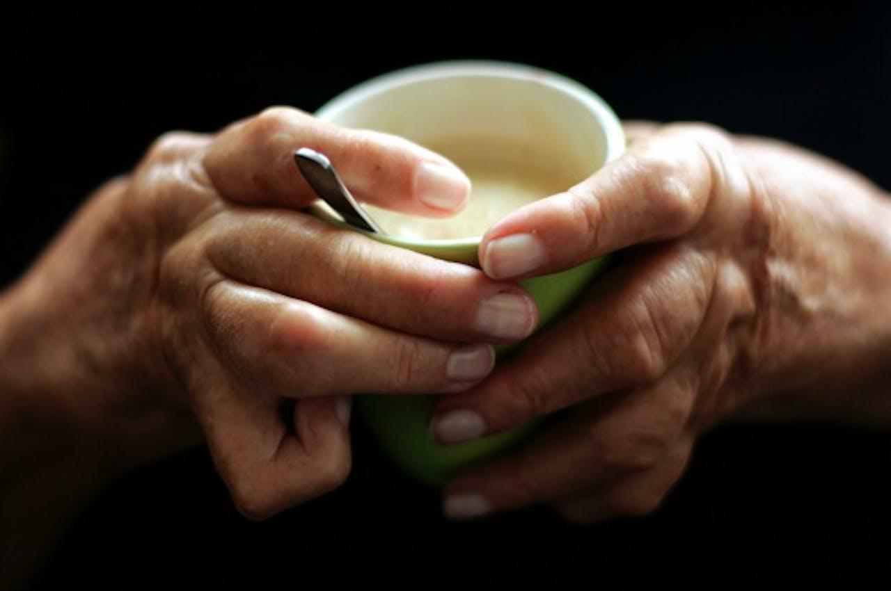 Een patiënt met vergroeide handen door reuma. Foto ANP