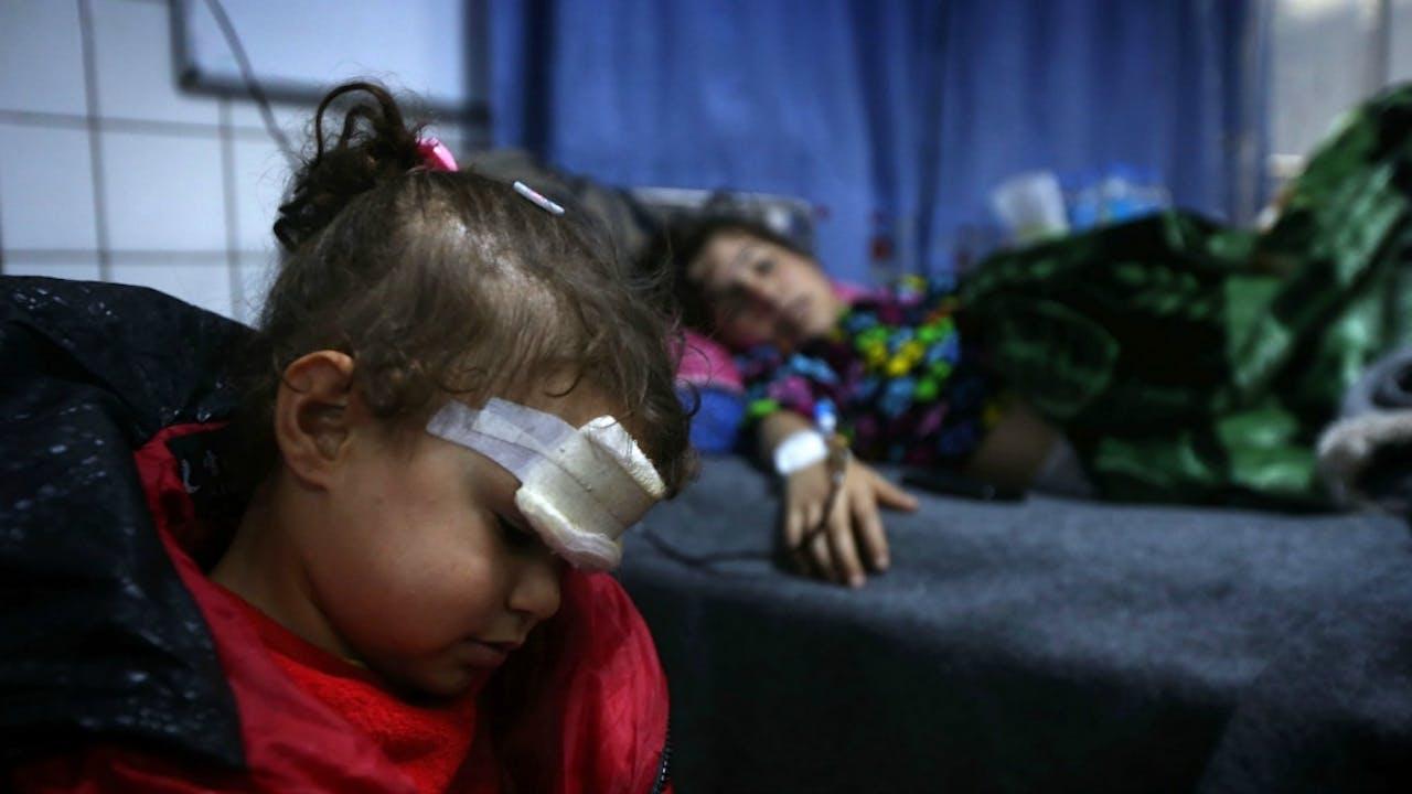 Irakese kinderen die gewond zijn geraakt door de gevechten in Mosul, worden behandeld in een nabij gelegen ziekenhuis. Foto ANP