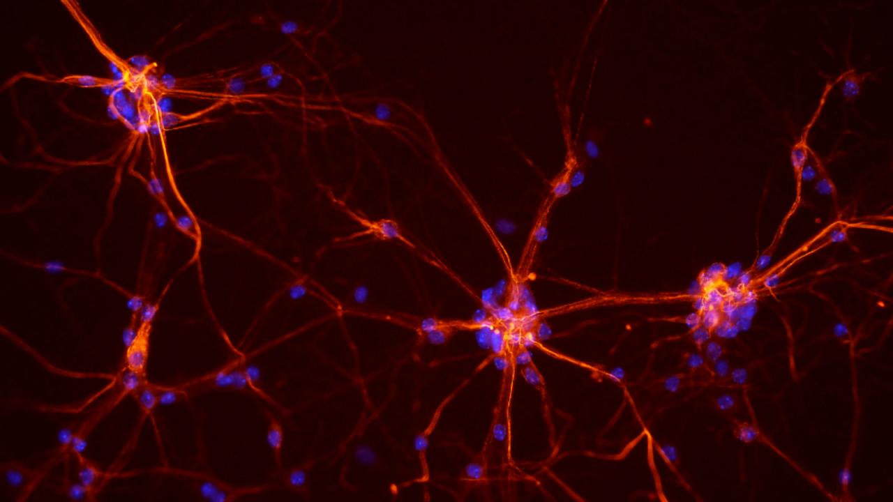 Neuronen uit het ruggenmerg van een muis (Afbeelding: NICHD/S. Jeong)