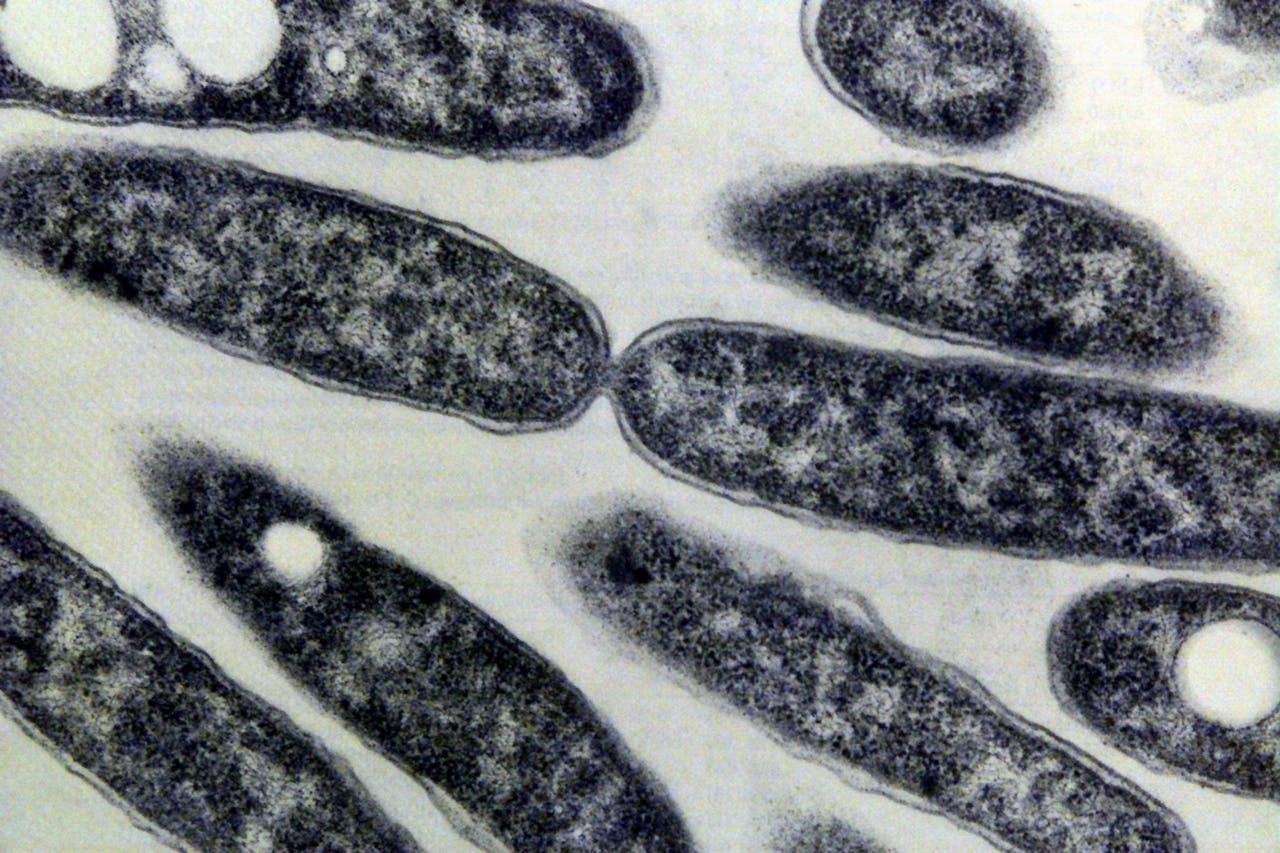 1999-03-16 14:24:36 De Legionella Pneuophila bacterie ongeveer negenduizend keer uitvergroot met een electronen microscoop. De bacterie is de veroorzaker van de veteranenziekte.