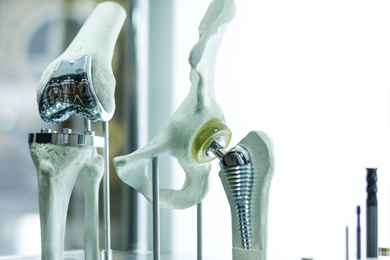 Een 3D geprinte knie en een heupprothese.